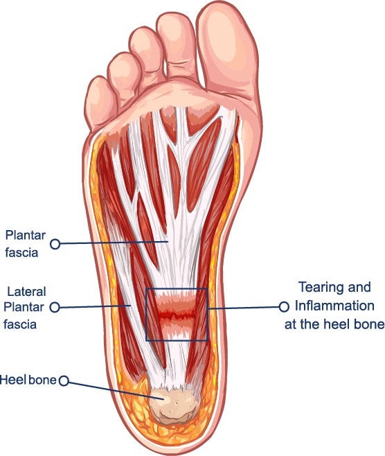 Foot Pain And Heel Pain Body Active Physio